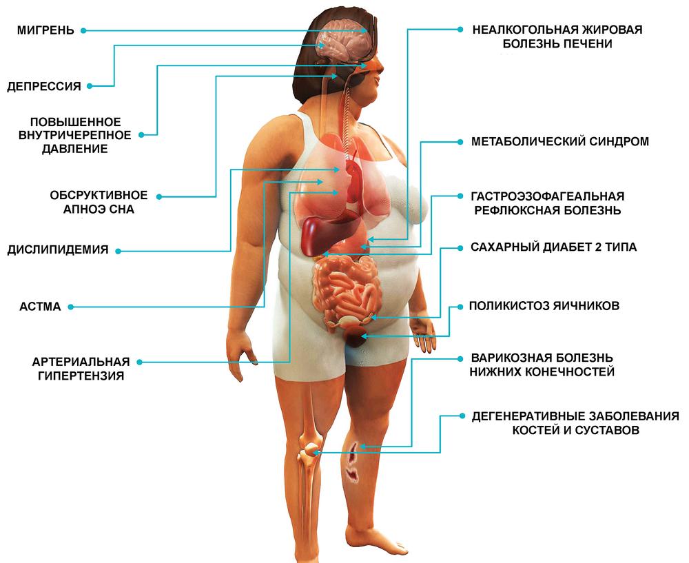 Ожирение и Кето Диета